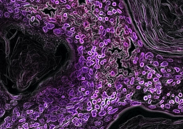 cells and insulin sensitivity diabetes - Page feature